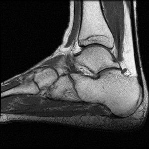 MRI of an ankle